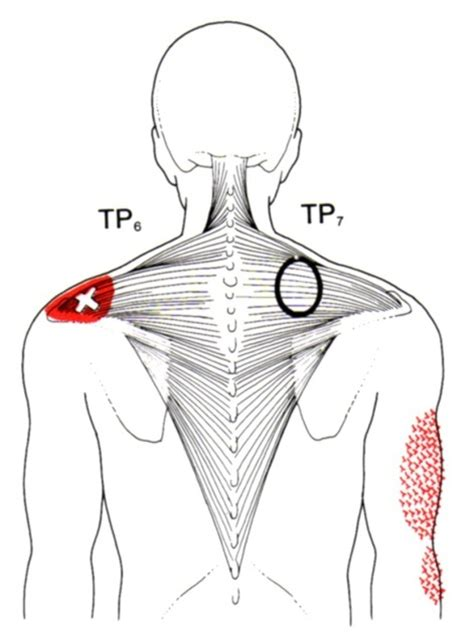 Trapezius   The Trigger Point & Referred Pain Guide